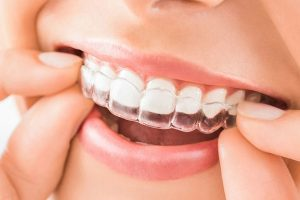 Best Food to Eat during Teeth Alignment Treatment